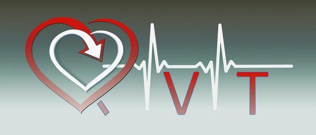 Quoi de neuf docteur sur la QVT - laqvt.fr QVT Qualité de Vie au Travail
